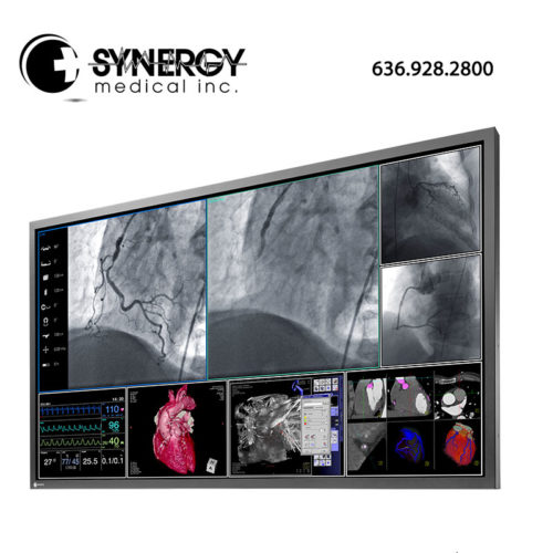 Eizo RadiForce LS580W 58in 8MP Surgical Monitor