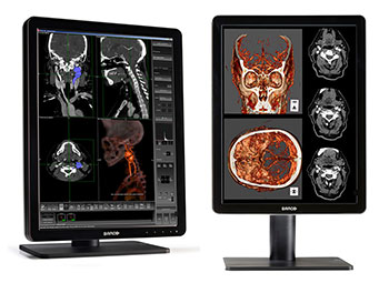 barco mio diagnostic monitors