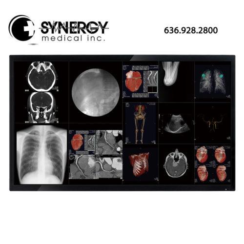 Optik View 40in DC4081 4K Surgical Display