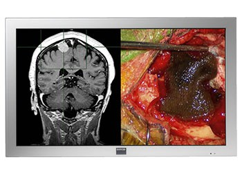 Barco Surgical Monitors